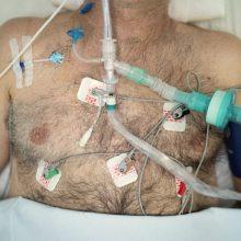 Ligoninėse gydomi 848 COVID-19 pacientai, iš jų 93 – reanimacijoje