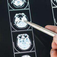 PSO: koronaviruso pandemija daro katastrofinį poveikį vėžio gydymui Europoje