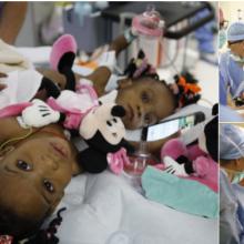 Prancūzijoje atlikta sėkminga Siamo dvynių atskyrimo operacija