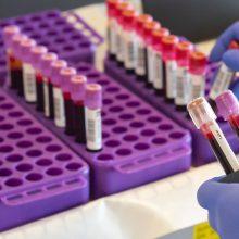 Koronavirusas Latvijoje: per parą patvirtinti du nauji atvejai