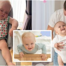 Be dešinio šlaunikaulio gimęs Jokūbas – pozityvus mažylis, kuriam reikalinga sudėtinga operacija