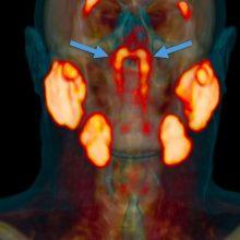 Neįtikėtina – mokslininkai žmogaus galvoje surado naują organą