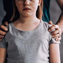 Globėjas kaltinamas septynerius metus seksualiai prievartavęs globojamas mergaites