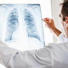 """""""Teltonika"""" netrukus išsiųs 100 pirmųjų plaučių ventiliavimo aparatų"""