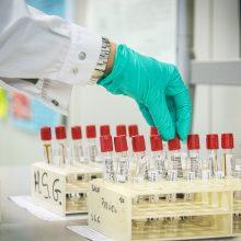 Patvirtinti koronaviruso atvejai: Lietuva – 1534, Latvija – 997, Estija – 1770