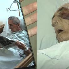 Šokiruojanti istorija: ligoninėje žiauriai sumuštas senolis
