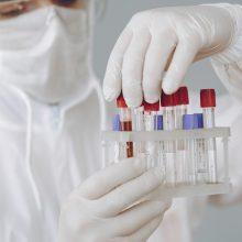 NVSPL turi 180,8 tūkst. serologinių greitųjų testų, daugiau įsigyti kol kas neplanuojama