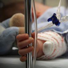 Į Panevėžio ligoninės reanimaciją atvežtas arbata nusiplikęs mažametis