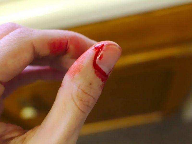 Klaipėdoje aštriu daiktu sužalota mergina