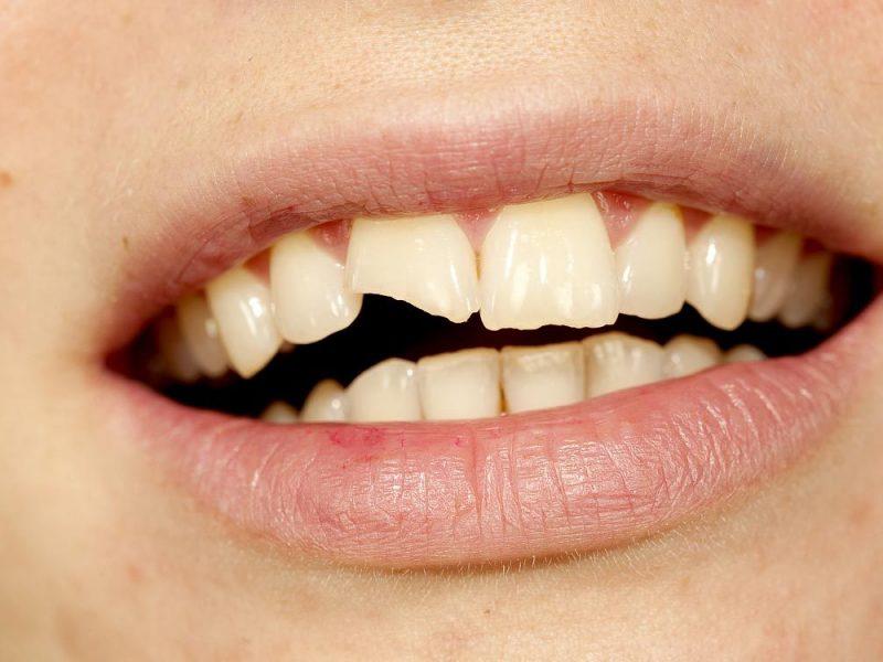 Nuskilo dantis? Padariniai – ne tik estetiniai