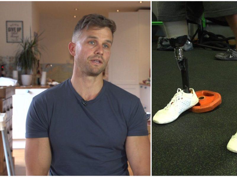 Skaudi istorija: po amputuotos kojos lietuvis pasiekė visišką gyvenimo dugną