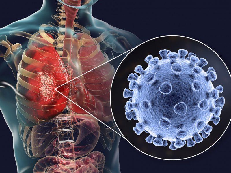 Koronaviruso plitimas organizme: infekcija paveikia ne tik plaučius