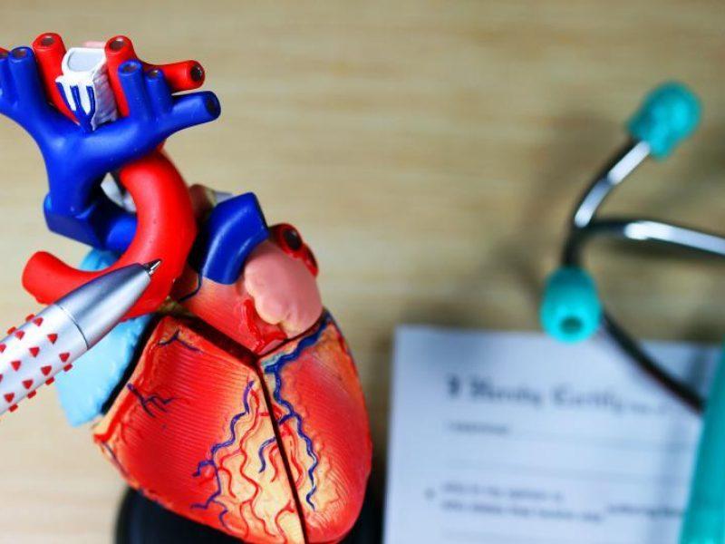 su hipertenzija nuotr