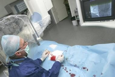 sveikatos širdies kateterizavimas