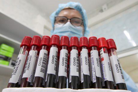 Profilaktiniai testavimai pagal epidemiologinius rodiklius – nuo pirmadienio